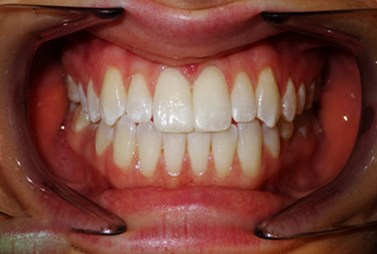 Smile closeup with healthy gums