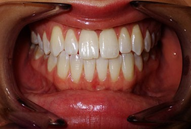 Patient with swollen bleeding gums