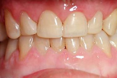 Teeth repaired to flawless white