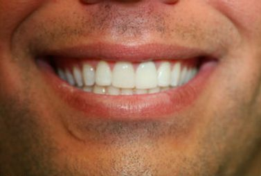 Bright white smile following cosmetic dentistry
