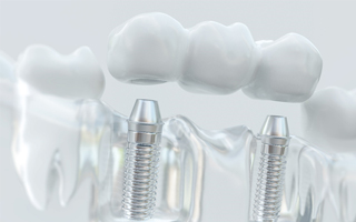 clear model of dental implant restoration