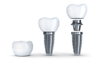 Crown, implant, and abutment