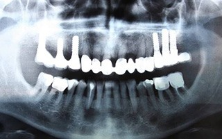 Panoramic dental x-rays with six dental implants