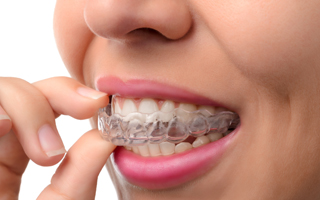 Baltimore Invisalign woman inserting clear aligner