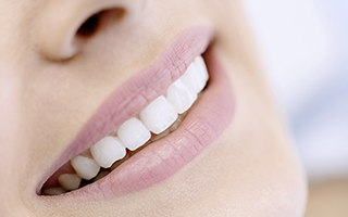 Closeup of gorgeous smile with porcelain veneers