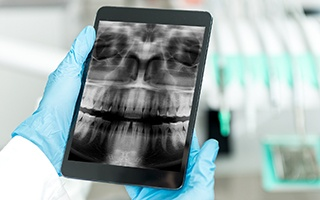 Digital x-ray on tablet