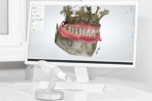 dental scanner